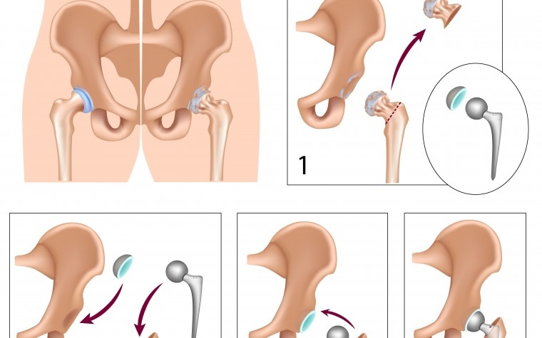 Hip replacement surgery in cerebral palsy