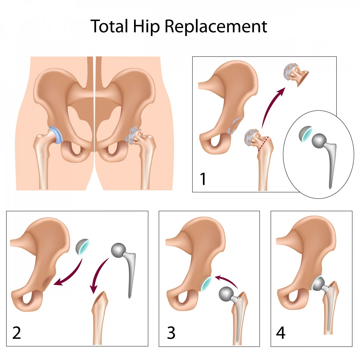 Total Hip Replacement Surgery In Cerebral Palsy Patients Improves