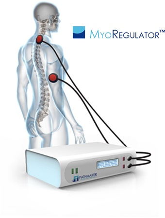 Myoregulator