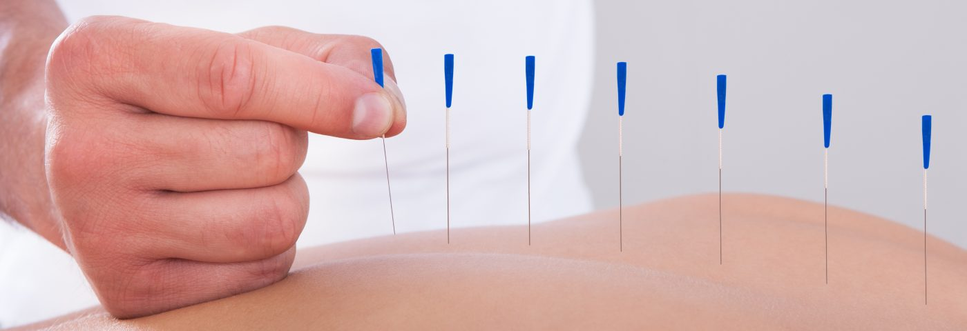 Clinical Trial Recruiting Children With CP to Evaluate Scalp Acupuncture's Effect on Motor Function