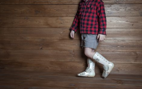 Researchers May Have Found New Way to Help Children With Spastic CP Walk Better