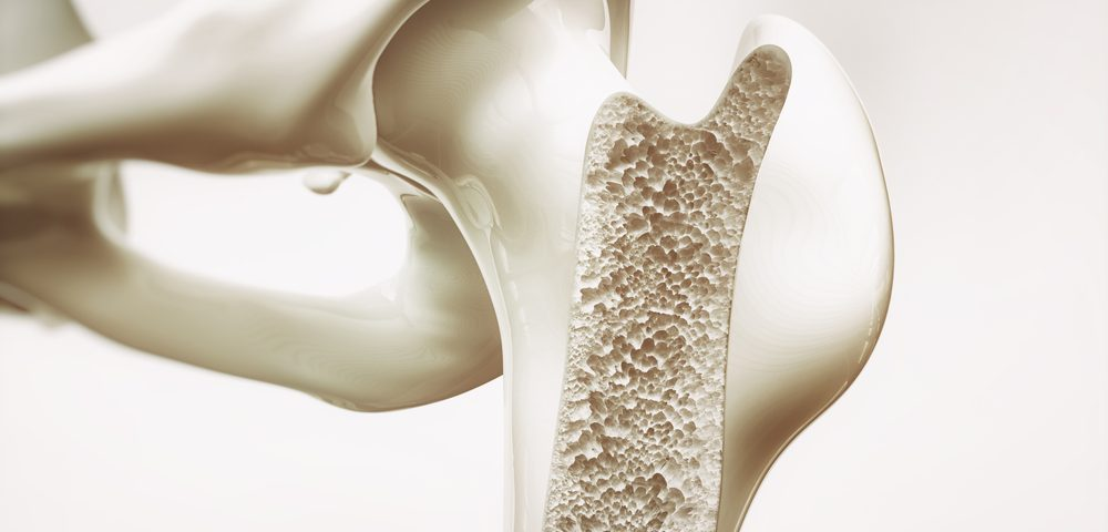 Finding of Bone Loss Marker in Non-Ambulatory CP Patients May Aid in Future Research